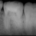 20210105122955 150x150 - じわじわと歯髄組織が細菌感染していたので、根管治療をした症例です。