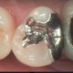 1  150x150 - 新しい虫歯治療について