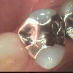5 150x150 - 新しい虫歯治療について