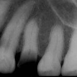 3 1 150x150 - 外れた冠の下に大きな虫歯が進んでおり、根管内が細菌感染していました。