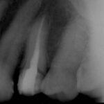 4 1 150x150 - 外れた冠の下に大きな虫歯が進んでおり、根管内が細菌感染していました。