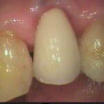 3 2 150x150 - 上顎小臼歯にインプラントを入れました。