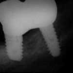 4 3 150x150 - 下顎に2本のインプラントを入れて咀嚼を回復しました。