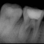2 150x150 - かなり痛みがあった歯の感染根管治療の症例です。