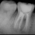 4 150x150 - かなり痛みがあった歯の感染根管治療の症例です。