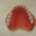 1 1 150x150 - 上顎は総義歯、下顎は部分入れ歯の症例です。