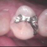 1 6 150x150 - 虫歯治療していた上顎小臼歯を接着性の審美治療でやり直しをしました。