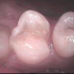 2 5 150x150 - 虫歯治療していた上顎小臼歯を接着性の審美治療でやり直しをしました。