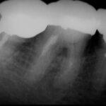 20110617092948 150x150 - 古いタイプの根管治療をやり直しました。