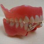 3 150x150 - 上顎は総義歯、下顎は部分入れ歯の症例です。