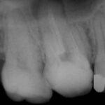 3 3 150x150 - 既に上顎の根管治療をされていますが、腫れたのでこれをやり直しました。