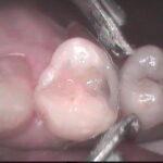 3 4 150x150 - 虫歯治療していた上顎小臼歯を接着性の審美治療でやり直しをしました。