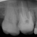 4 2 150x150 - 既に上顎の根管治療をされていますが、腫れたのでこれをやり直しました。