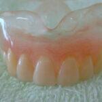 DSC09515 150x150 - 透明な総入れ歯です