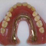 DSC02112 150x150 - 無口蓋型の上顎総入れ歯の症例です。