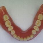 DSC02113 150x150 - 無口蓋型の上顎総入れ歯の症例です。