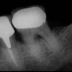 1 1 150x150 - 下顎大臼歯、感染根管治療の症例です。咬むと強い違和感がありました。